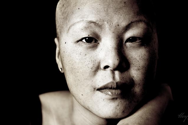 kvinde med brystkræft